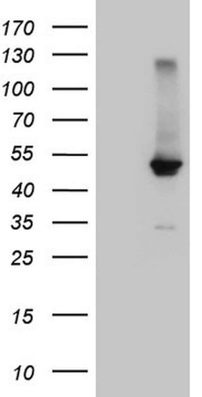 NR1H4 Mouse anti-Human, Clone: OTI4F12, lyophilized, TrueMAB  100 µg;