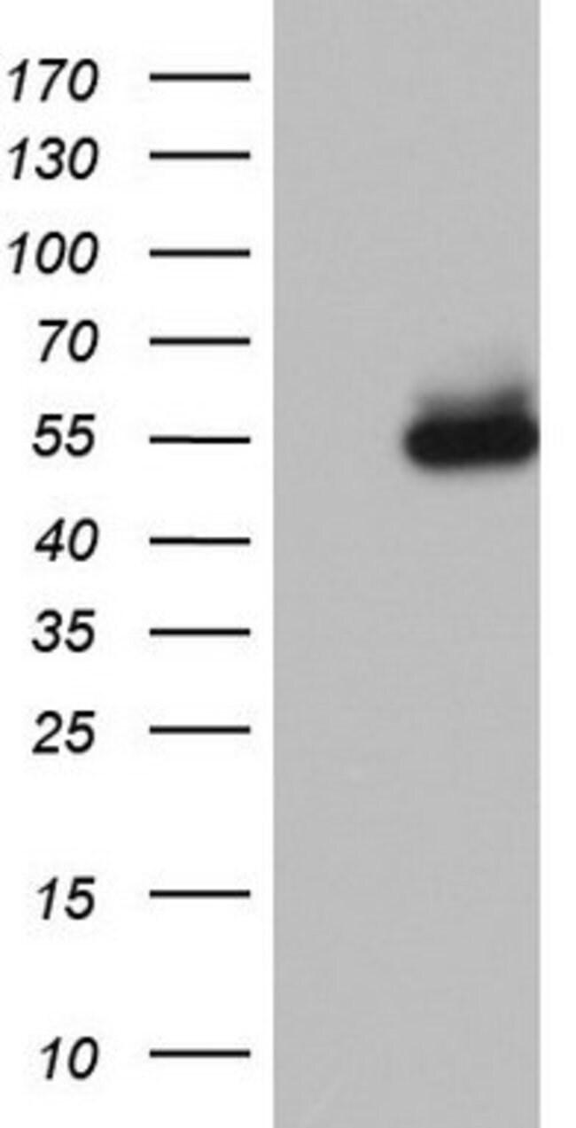 NR2C1 Mouse anti-Human, Clone: OTI3A4, lyophilized, TrueMAB  100 µg;
