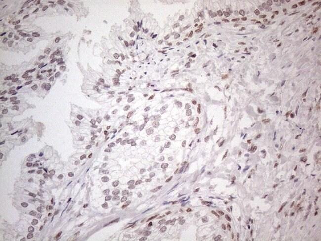 NR2C2 Mouse anti-Human, Clone: OTI4B1, lyophilized, TrueMAB  100 µg;