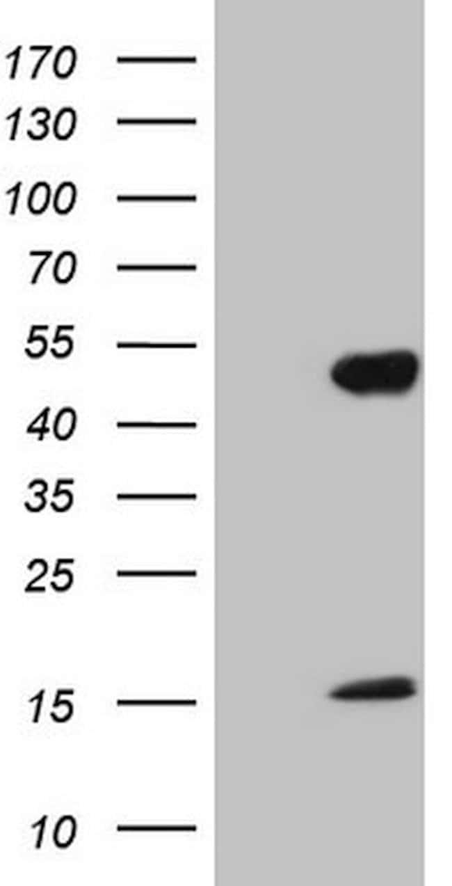 NR2E3 Mouse anti-Human, Clone: OTI2G3, lyophilized, TrueMAB  100 µg;