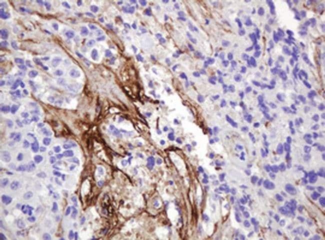NRAS Mouse anti-Human, Clone: OTI5G7, liquid, TrueMAB  100 µL; Unconjugated
