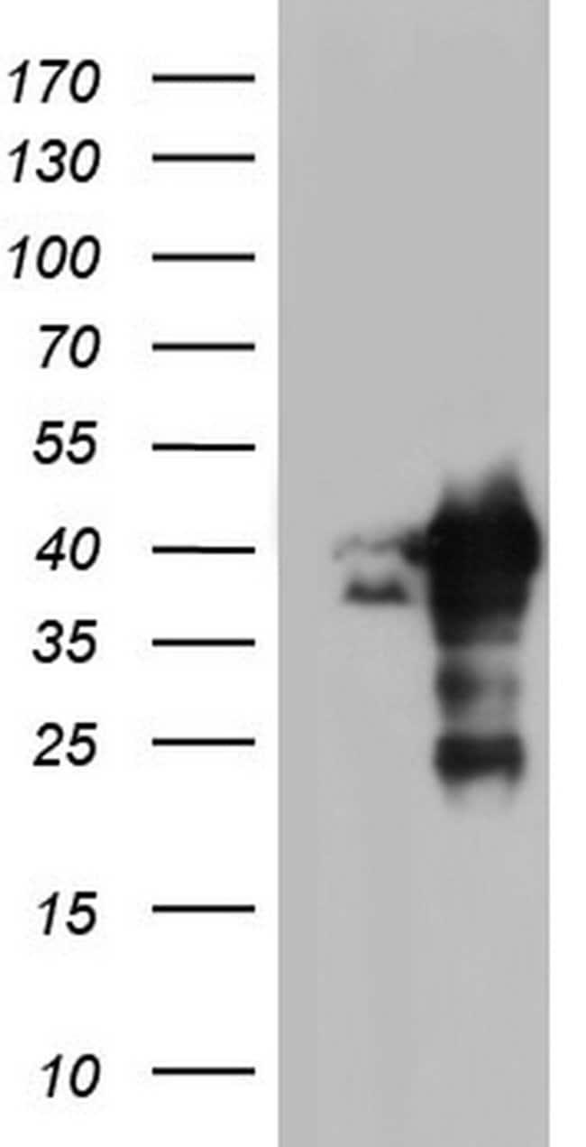 NRBF2 Mouse anti-Human, Clone: OTI2A6, lyophilized, TrueMAB  100 µg;