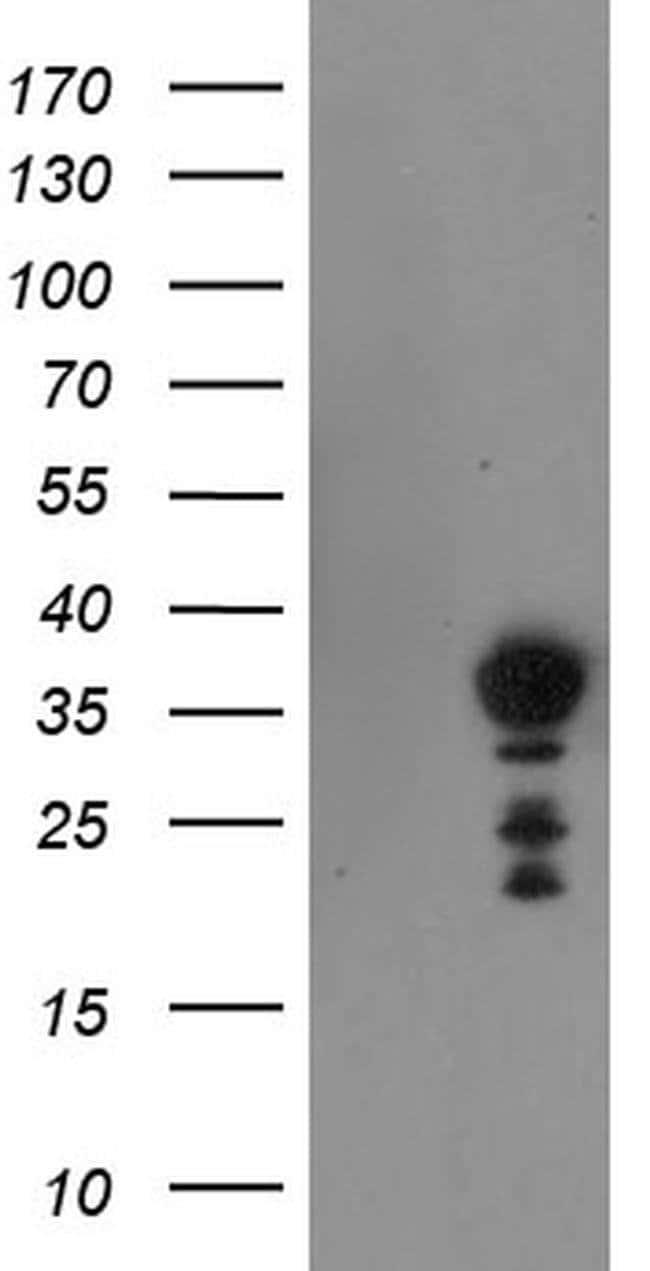 NRIP3 Mouse anti-Human, Clone: OTI1A9, liquid, TrueMAB  100 µL; Unconjugated