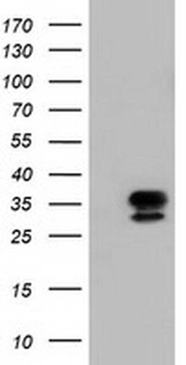 NSMCE2 Mouse anti-Human, Clone: OTI4H9, liquid, TrueMAB  100 µL; Unconjugated