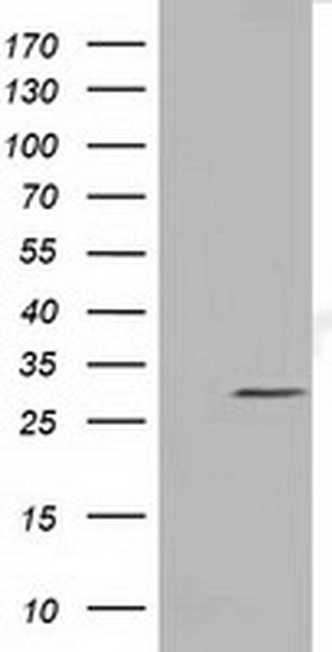 NSMCE2 Mouse anti-Human, Clone: OTI6A6, liquid, TrueMAB  100 µL; Unconjugated