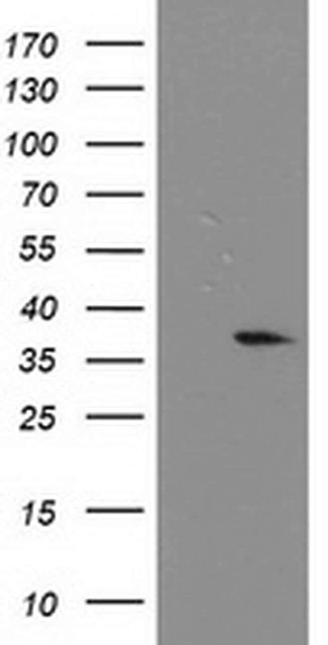 NUBPL Mouse anti-Human, Clone: OTI2C8, liquid, TrueMAB  100 µL; Unconjugated