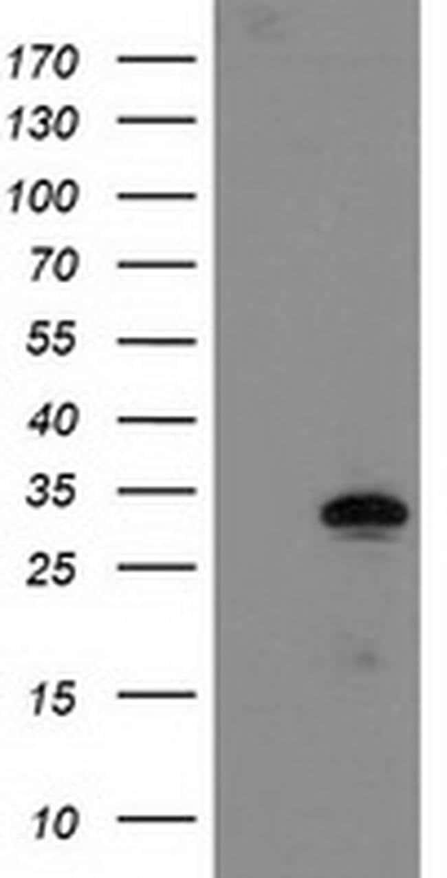 NUBPL Mouse anti-Human, Clone: OTI1C5, liquid, TrueMAB  100 µL; Unconjugated