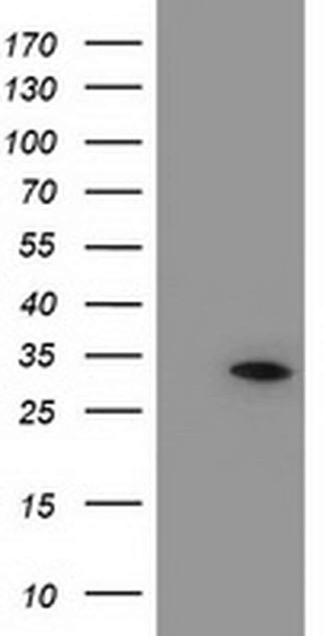 NUBPL Mouse anti-Human, Clone: OTI2G7, liquid, TrueMAB  100 µL; Unconjugated