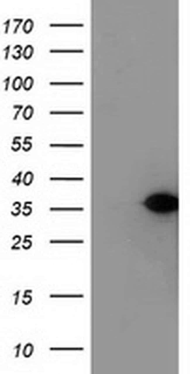 NUBPL Mouse anti-Human, Clone: OTI5C12, liquid, TrueMAB  100 µL; Unconjugated