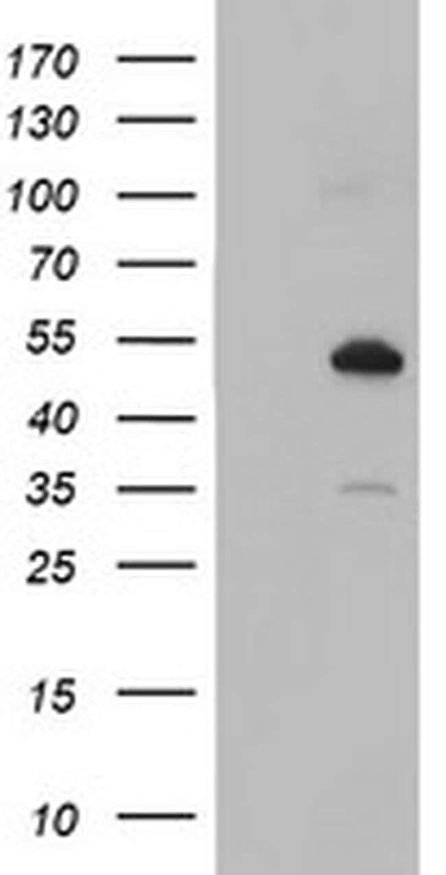 NUCB1 Mouse anti-Human, Clone: OTI1G3, liquid, TrueMAB  100 µL; Unconjugated