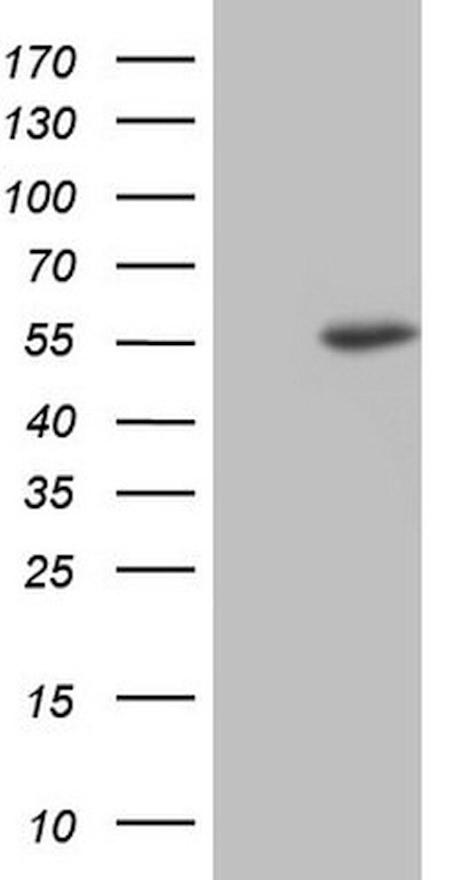 NUDT12 Mouse anti-Human, Clone: OTI1B7, lyophilized, TrueMAB  100 µg;