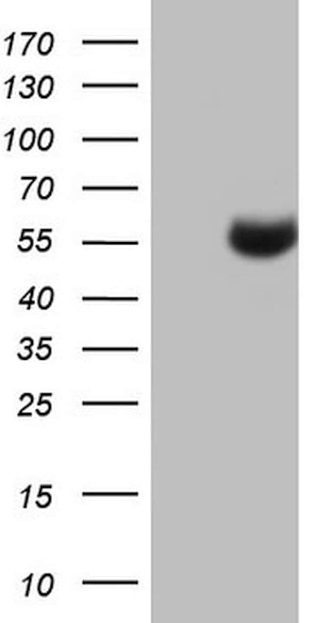 NUDT12 Mouse anti-Human, Clone: OTI1A2, lyophilized, TrueMAB  100 µg;