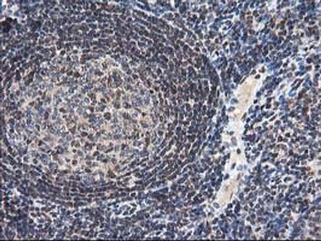 NUDT18 Mouse anti-Human, Clone: OTI5D7, liquid, TrueMAB  100 µL; Unconjugated