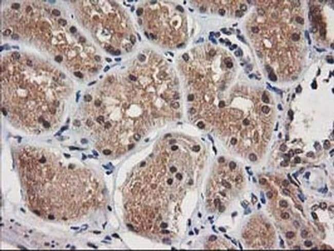 NUDT18 Mouse anti-Human, Clone: OTI5F9, liquid, TrueMAB  100 µL; Unconjugated