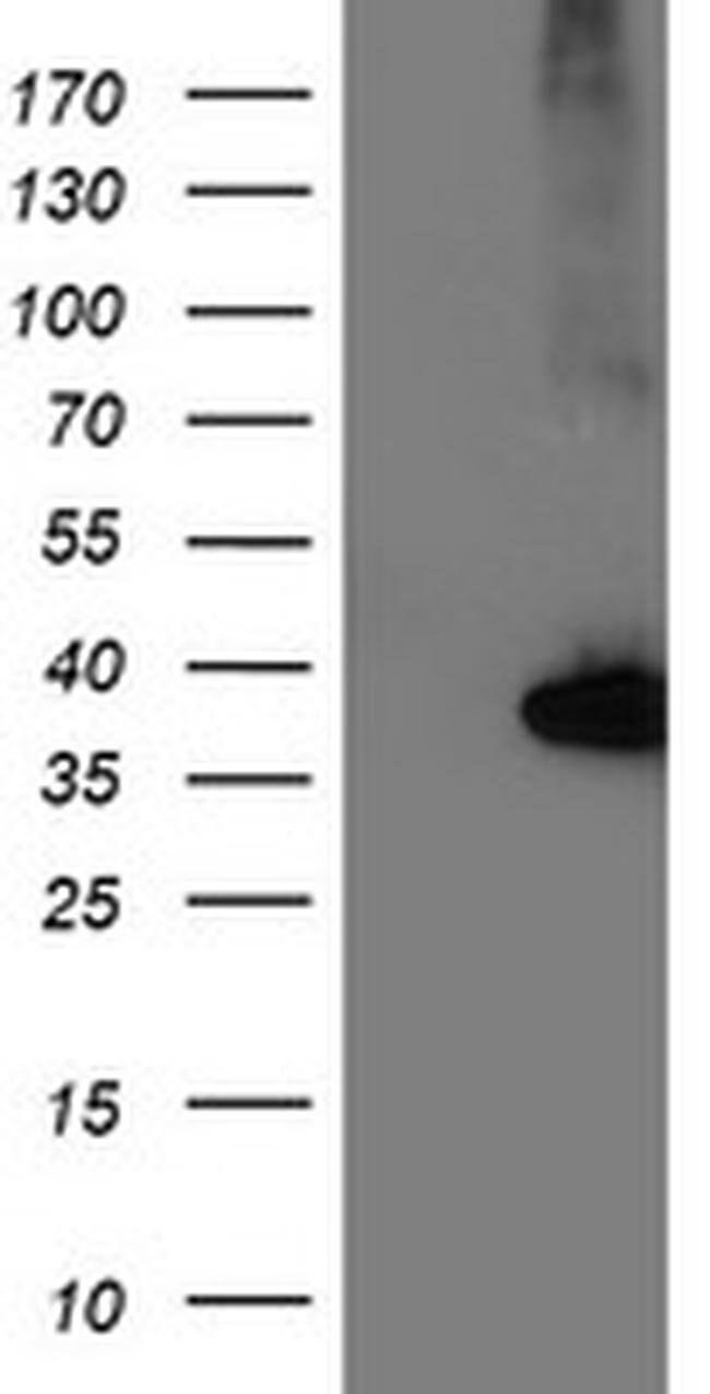 NUDT18 Mouse anti-Human, Clone: OTI6B7, liquid, TrueMAB  100 µL; Unconjugated