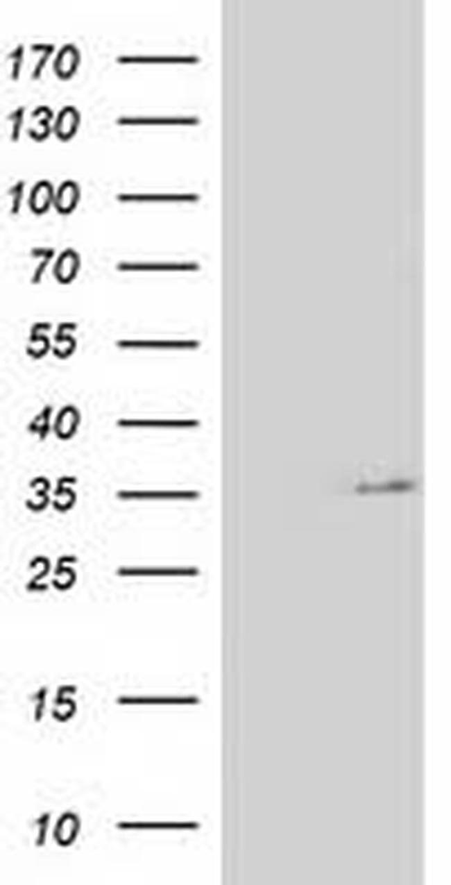 NUDT6 Mouse anti-Human, Clone: OTI9F5, liquid, TrueMAB  100 µL; Unconjugated