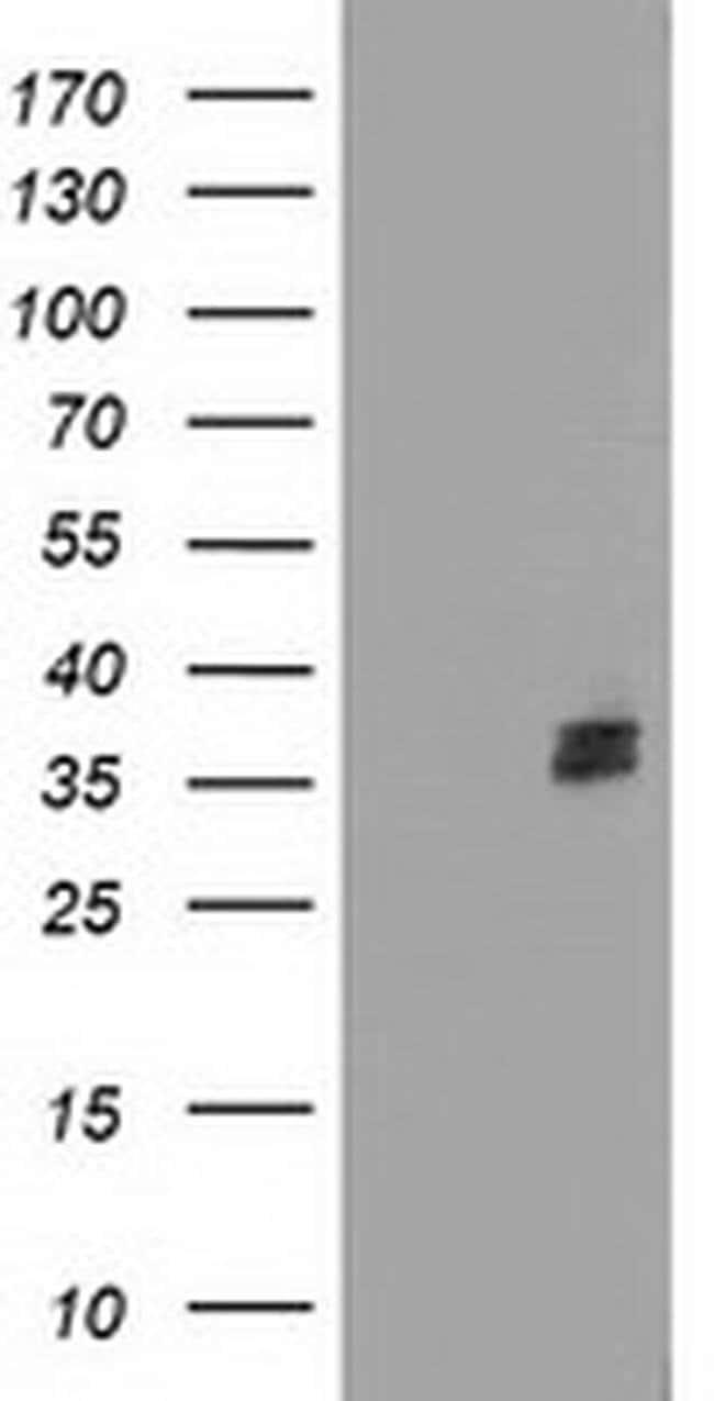 NUDT6 Mouse anti-Human, Clone: OTI9D5, liquid, TrueMAB  100 µL; Unconjugated