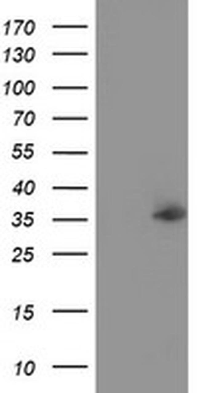 NUDT6 Mouse anti-Human, Clone: OTI7F4, liquid, TrueMAB  100 µL; Unconjugated