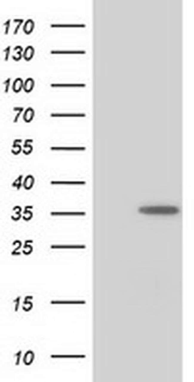 NUDT6 Mouse anti-Human, Clone: OTI2E3, liquid, TrueMAB  100 µL; Unconjugated