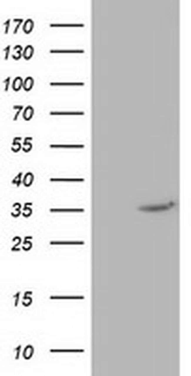 NUDT6 Mouse anti-Human, Clone: OTI10A9, liquid, TrueMAB  100 µL; Unconjugated