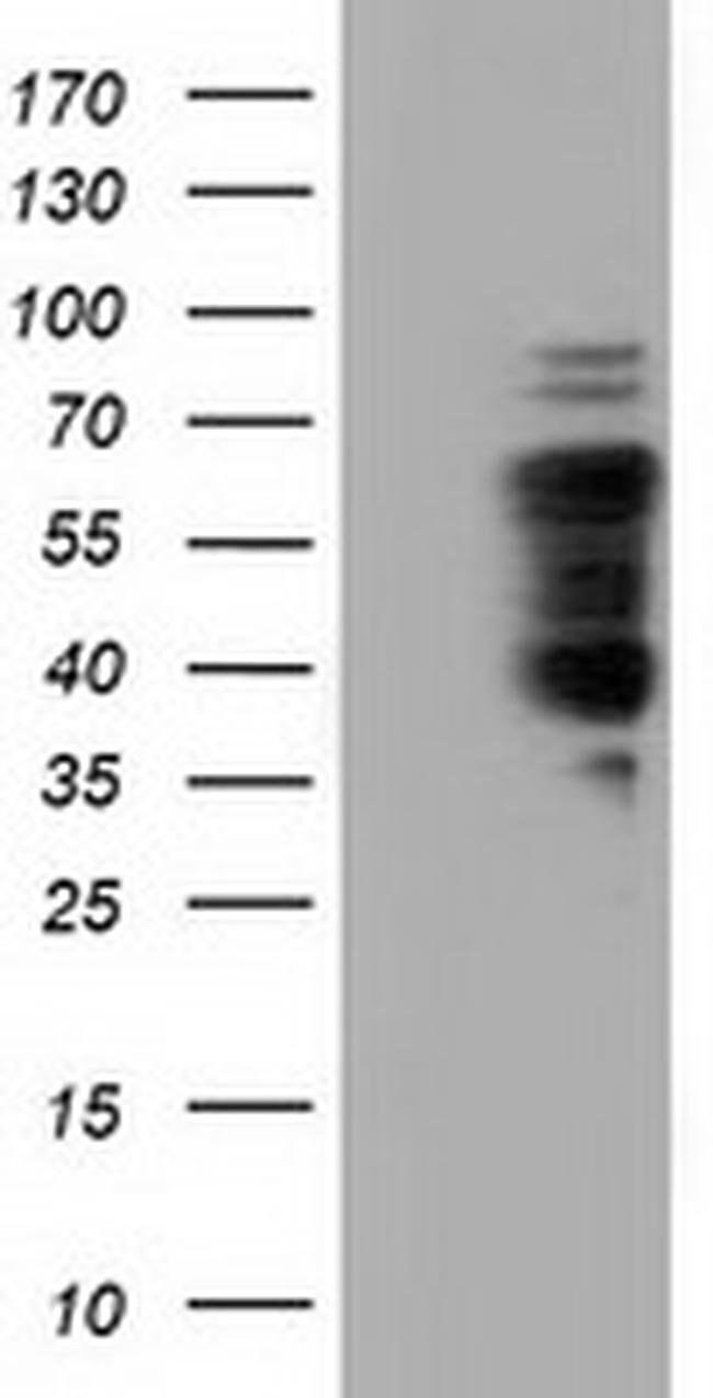 NUMB Mouse anti-Human, Clone: OTI2C4, liquid, TrueMAB  100 µL; Unconjugated