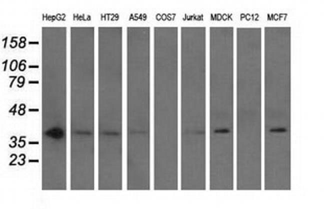 NXNL2 Mouse anti-Human, Clone: OTI1C3, liquid, TrueMAB  100 µL; Unconjugated
