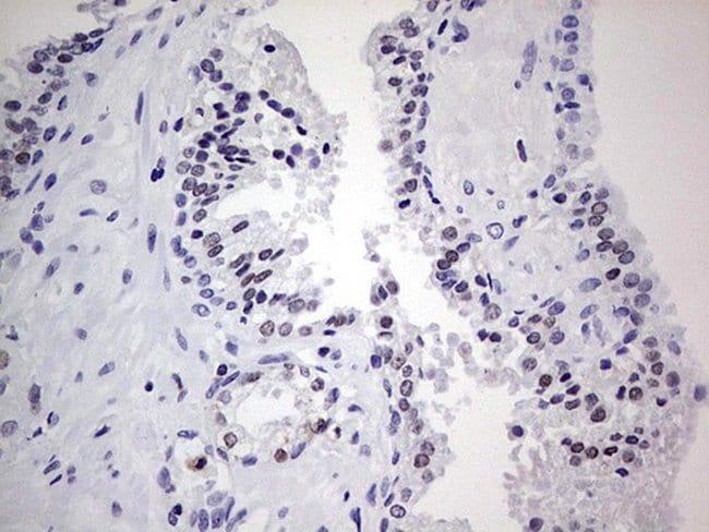 Nkx3.1 Mouse anti-Human, Clone: OTI9H7, lyophilized, TrueMAB  100 µg;