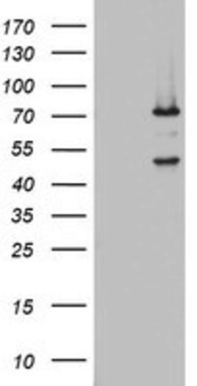 OAS2 Mouse anti-Human, Clone: OTI5E1, lyophilized, TrueMAB  100 µg;