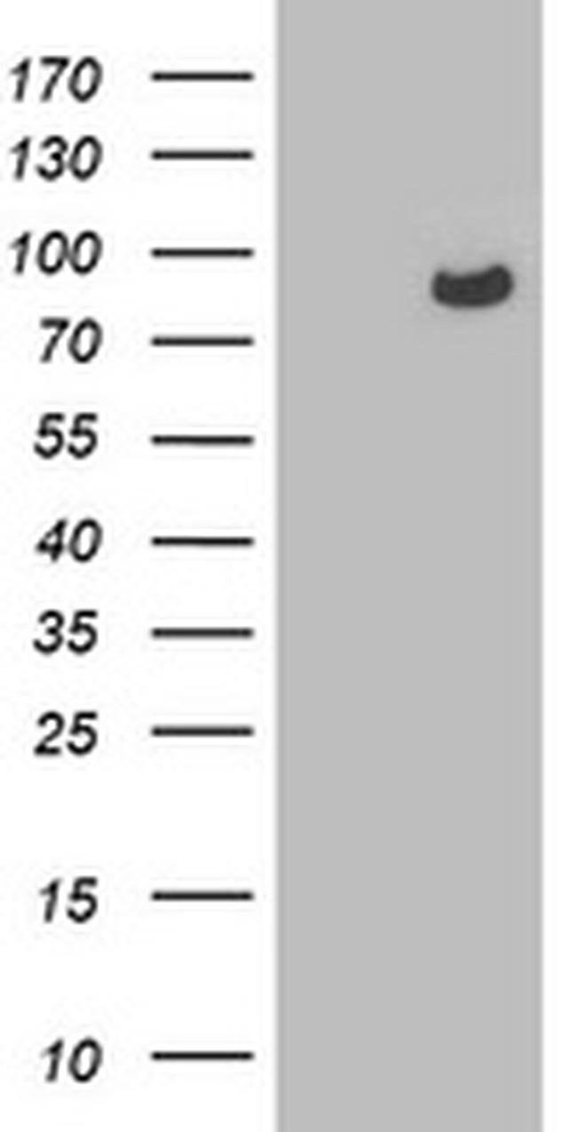 OSBP Mouse anti-Human, Clone: OTI1A4, liquid, TrueMAB  100 µL; Unconjugated