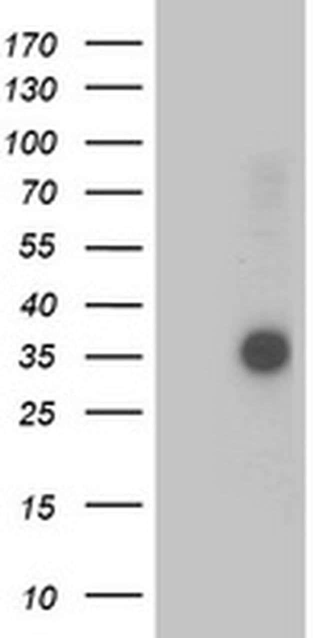 OSGEP Mouse anti-Human, Clone: OTI8B3, liquid, TrueMAB  100 µL; Unconjugated