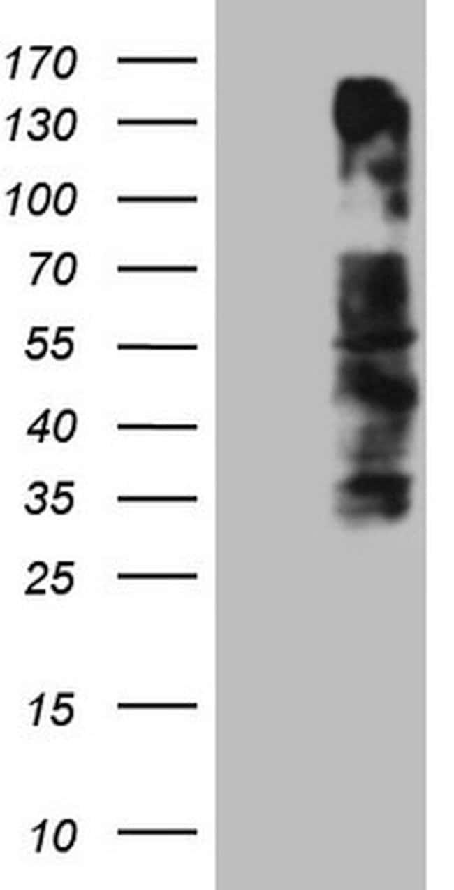 OSGIN2 Mouse anti-Human, Clone: OTI7D12, lyophilized, TrueMAB  100 µg;