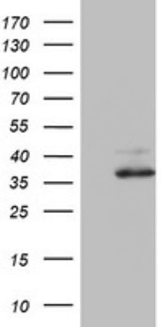 OTC Mouse anti-Human, Clone: OTI8A1, lyophilized, TrueMAB  100 µg;
