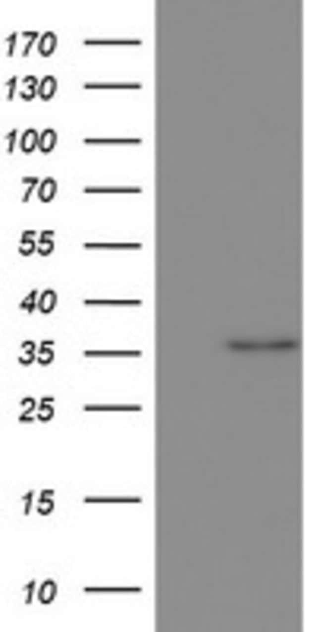 OTC Mouse anti-Human, Clone: OTI3H4, lyophilized, TrueMAB  100 µg;