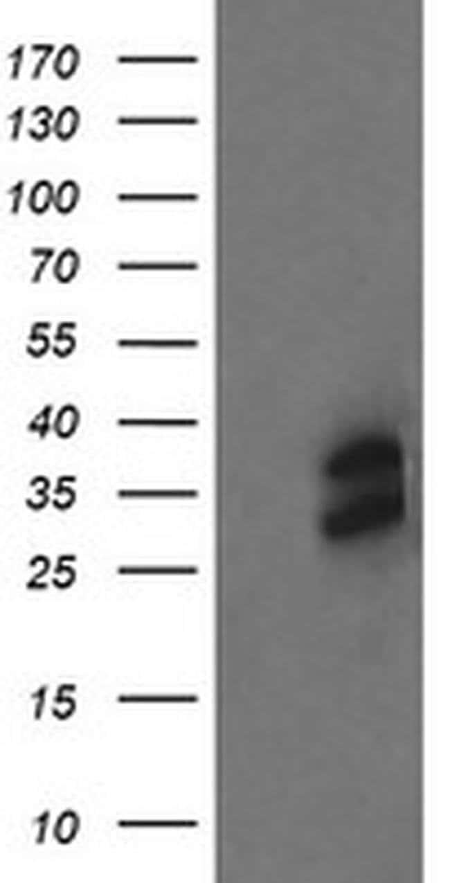 OTUB1 Mouse anti-Human, Clone: OTI5F7, liquid, TrueMAB  100 µL; Unconjugated