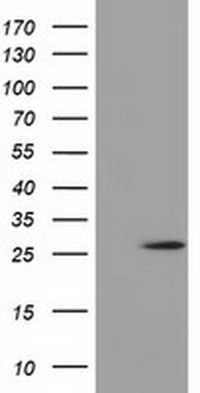 OTUB2 Mouse anti-Human, Clone: OTI11C8, liquid, TrueMAB  100 µL; Unconjugated