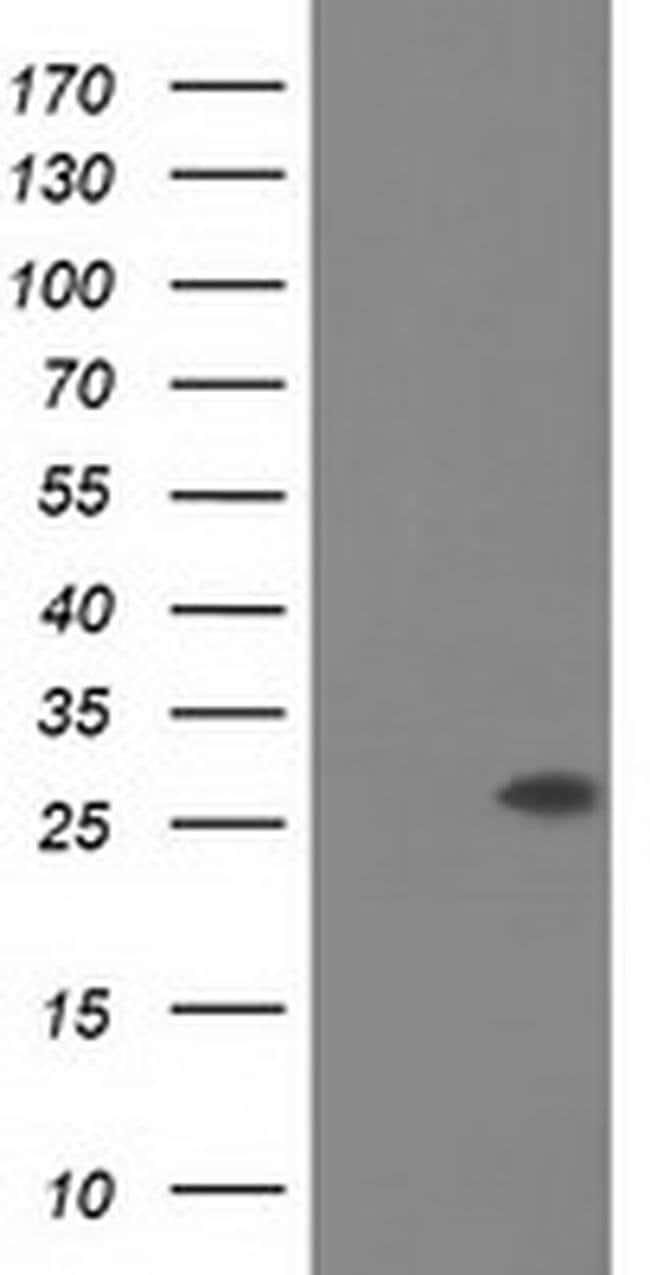 OTUB2 Mouse anti-Canine, Human, Rat, Clone: OTI11B3, liquid, TrueMAB  100