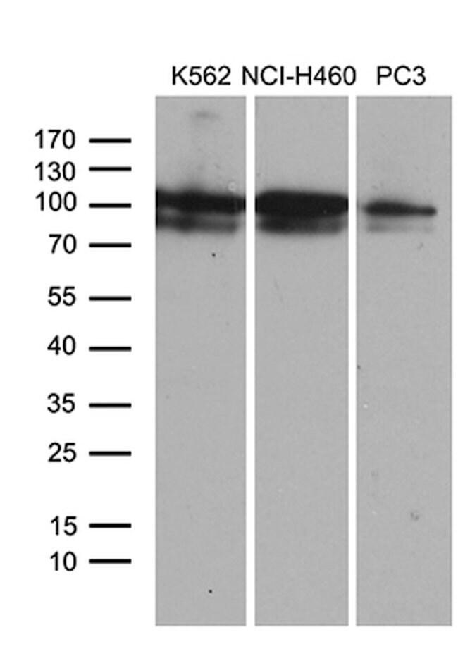 OTUD7B Mouse anti-Human, Clone: OTI2E2, lyophilized, TrueMAB  100 µg;