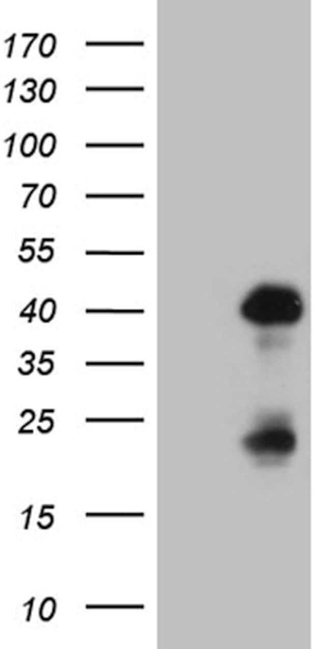 OTX2 Mouse anti-Human, Clone: OTI1A1, lyophilized, TrueMAB  100 µg;