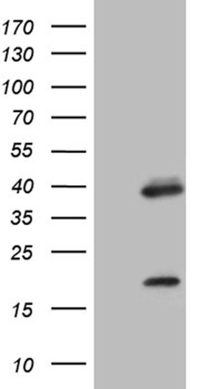 OTX2 Mouse anti-Human, Clone: OTI3G9, lyophilized, TrueMAB  100 µg;