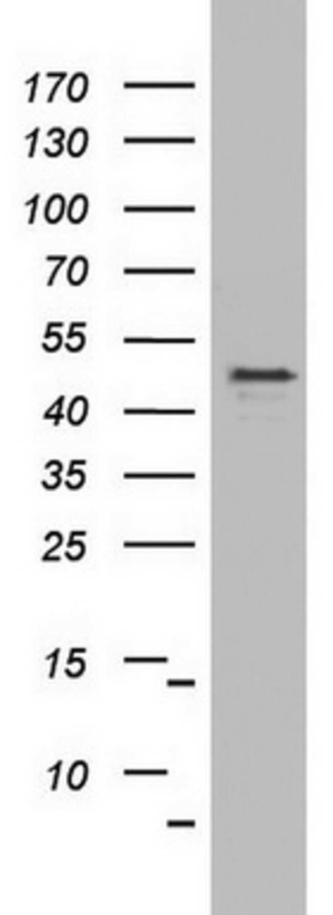 OXSM Mouse anti-Human, Clone: OTI4E10, lyophilized, TrueMAB  100 µg;
