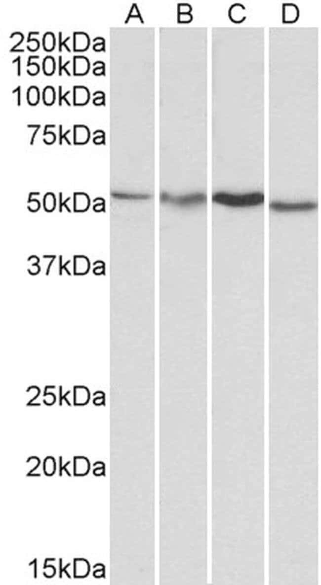 AKT3 Goat anti-Human, Mouse, Rat, Polyclonal, Invitrogen 100 µg; Unconjugated