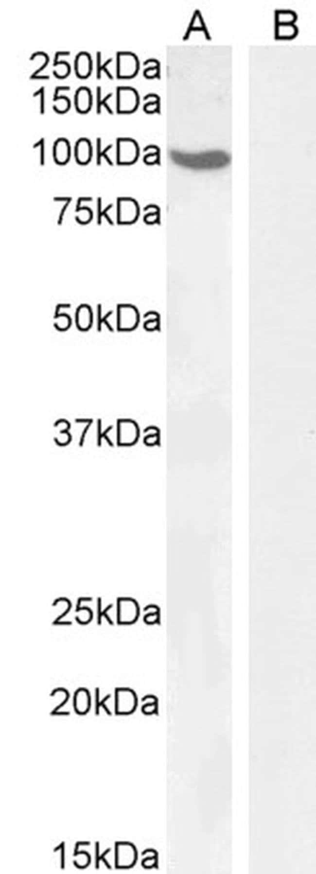 Androgen Receptor Goat anti-Human, Polyclonal, Invitrogen 100 μg; Unconjugated:Antibodies