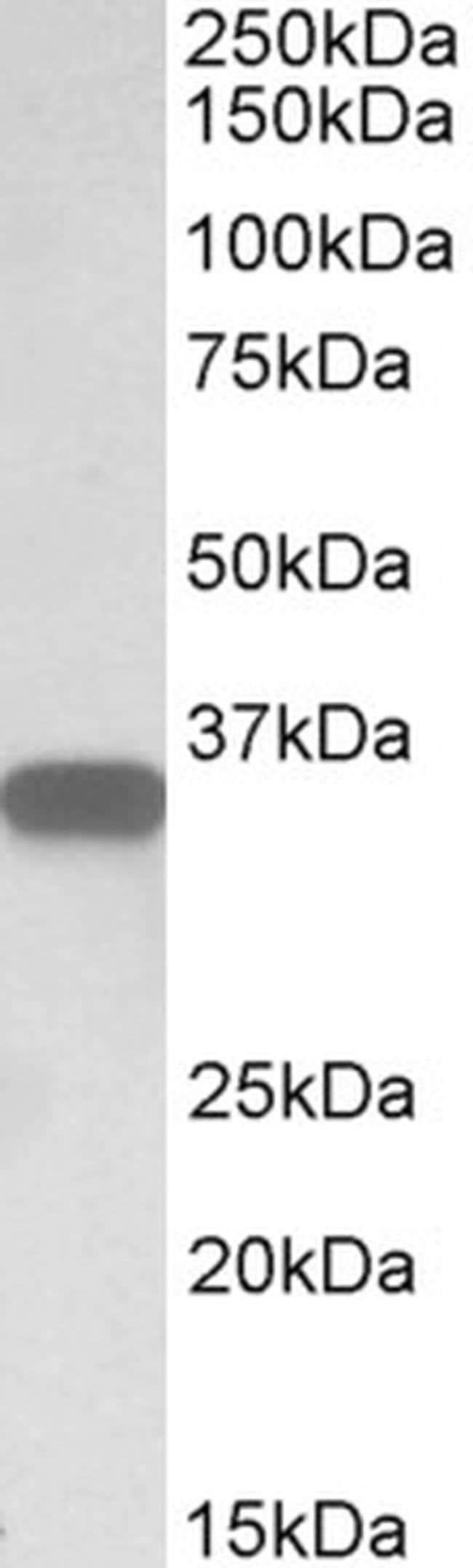 CD20 Goat anti-Human, Polyclonal, Invitrogen 100 µg; Unconjugated