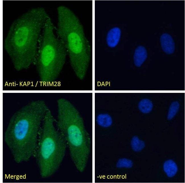 TRIM28 Goat anti-Human, Mouse, Polyclonal, Invitrogen 100 μg; Unconjugated:Antibodies