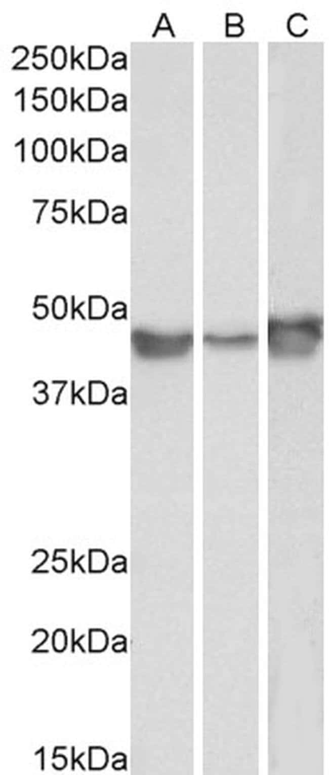 PAI1 Goat anti-Human, Polyclonal, Invitrogen 100 μg; Unconjugated:Antibodies