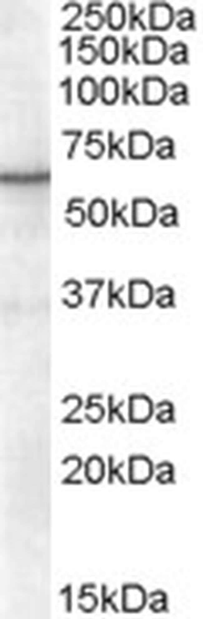 RXRA Goat anti-Human, Polyclonal, Invitrogen 100 μg; Unconjugated:Antibodies