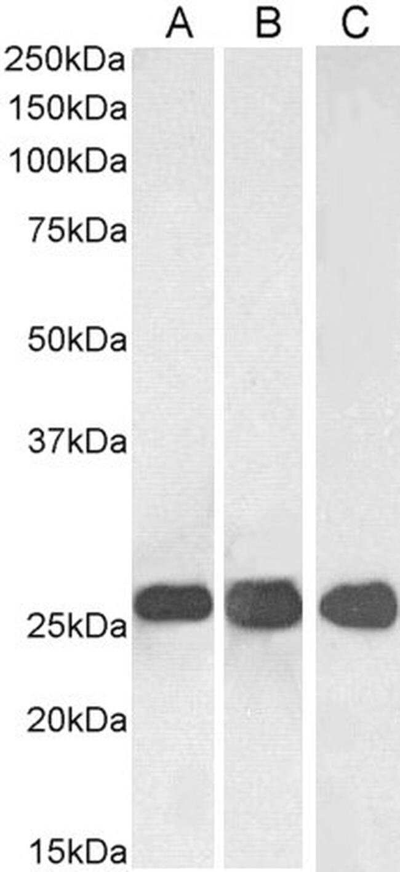 SNAP25 Goat anti-Human, Mouse, Rat, Polyclonal, Invitrogen 100 μg; Unconjugated:Antibodies