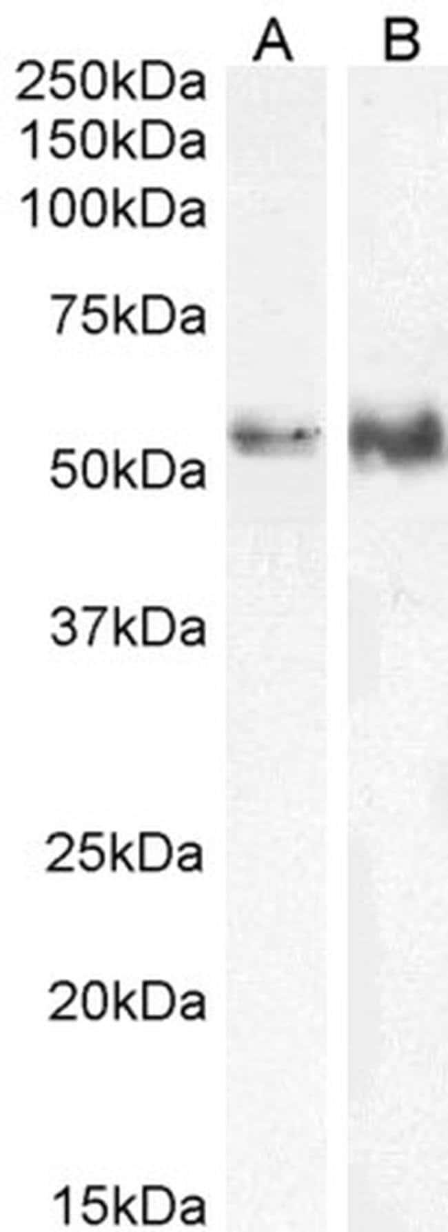 TFEB Goat anti-Human, Polyclonal, Invitrogen 100 μg; Unconjugated:Antibodies