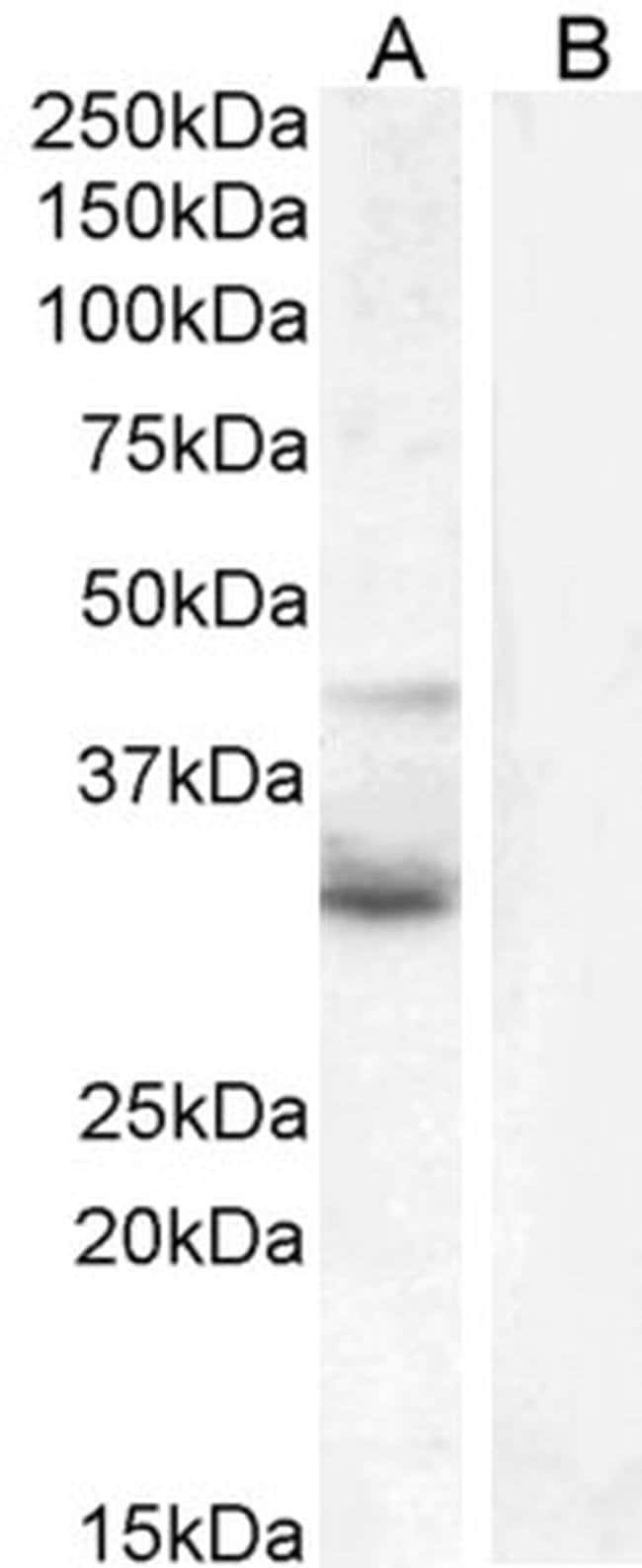 WNT4 Goat anti-Human, Polyclonal, Invitrogen 100 μg; Unconjugated:Antibodies