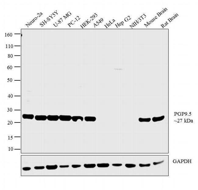 PGP9.5 Rabbit anti-Human, Mouse, Porcine, Rat, Polyclonal, Invitrogen 50